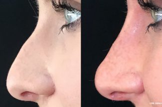 Observe Your Nose Bulge Decrease Naturally